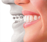 Invisalign Treatment in St Kilda