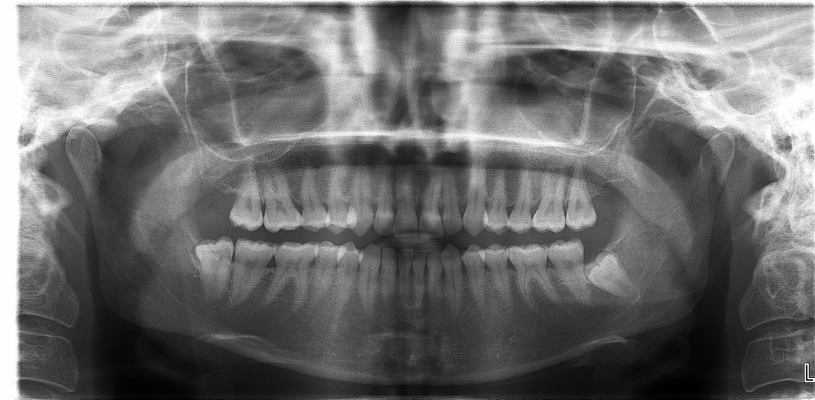 wisdom-tooth-extraction-St-Kilda-East-dentist-stkildadentist